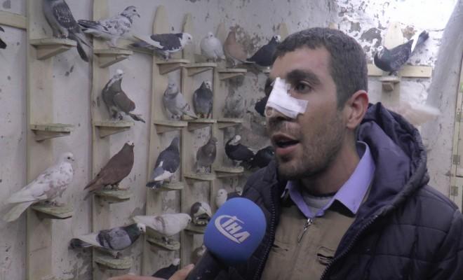 Ameliyattan Çıkar Çıkmaz Güvercinlere Koştu